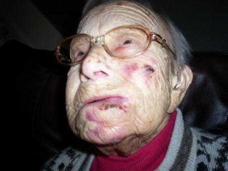 Basildon Recorder: Elenor Petchey, from Felmores fell and sustained heavy brusing and cuts